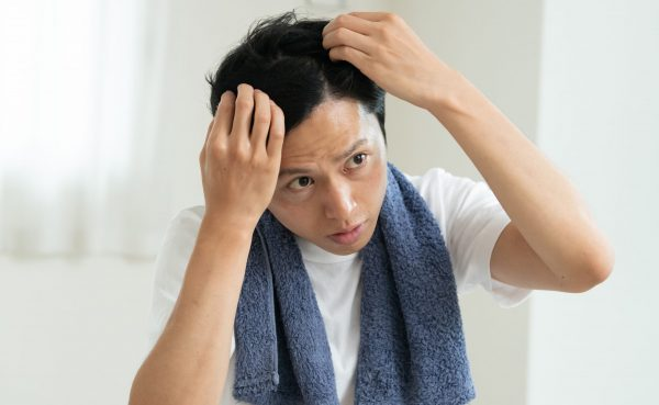 頭皮を気にする男性